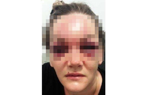 Homem espancou ex com socos e joelhadas, desfigurando o rosto dela